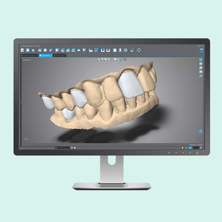 DWOS-dental-cad-software
