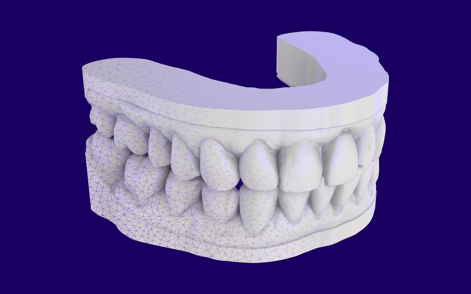 Digital-dental-model