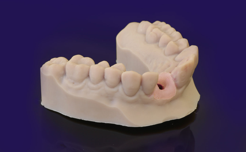 digital-implant-model
