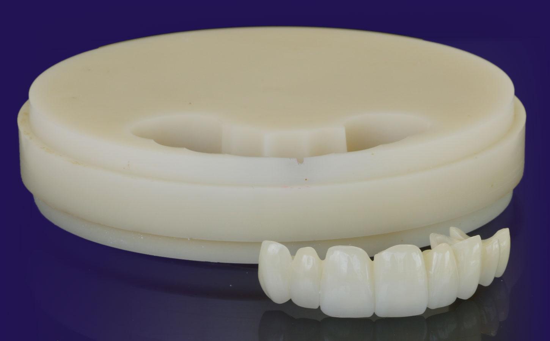 temporary-dental-prosthetic